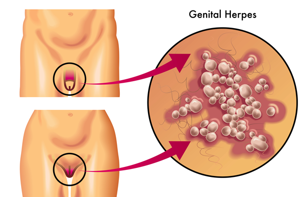 The symptoms of genital herpes for the first time include: 1