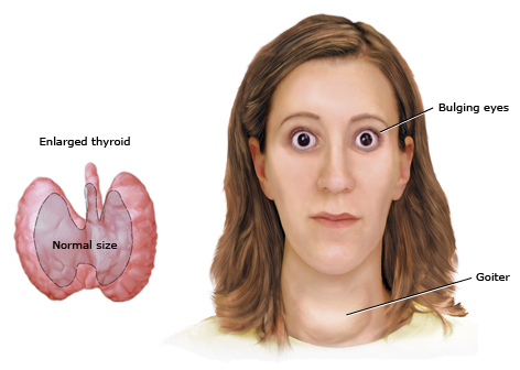 hyperthyroidism symptoms in women | medguidance, Human body