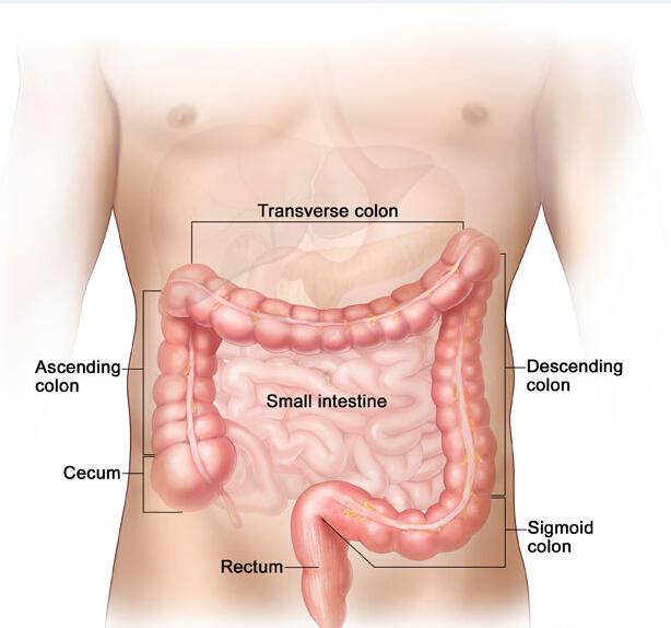 carcinoma in situ colon