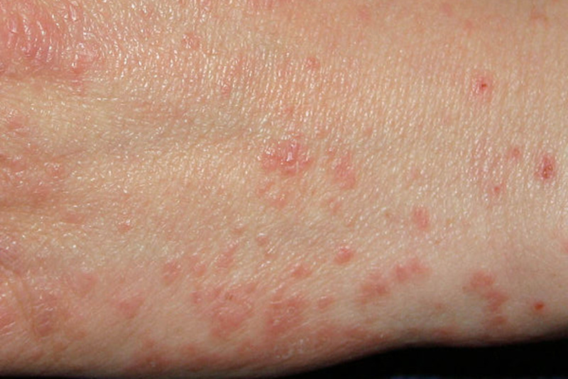 What Do Scabies Look Like? | New Health Advisor