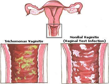 Can yeast infection be sexually transmitted