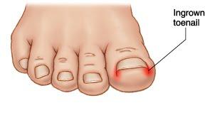 Ingrown toenail diagram showing typical effected areas of an ingrown toenail