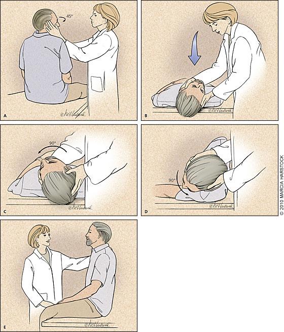 epley maneuver patient handout pdf