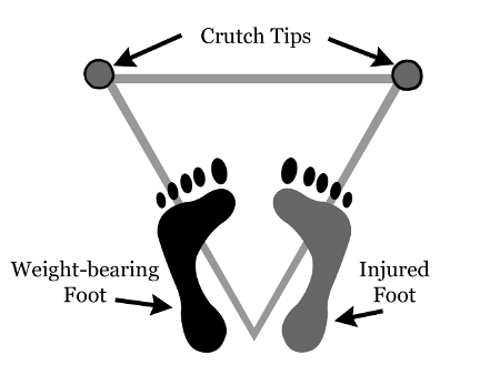 How To Walk With Crutches Medguidance