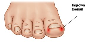 Ingrown toenail diagram showing typical effected areas of an ingrown toenail
