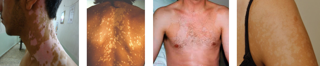 Tinea Versicolor: Pictures, Causes and Treatment | MedGuidance