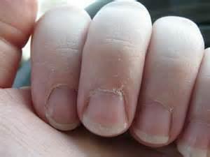 why do my fingers peel